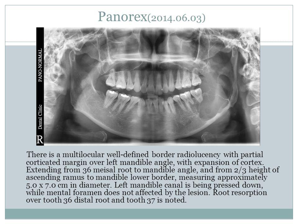 Panorex(2014.06.03)