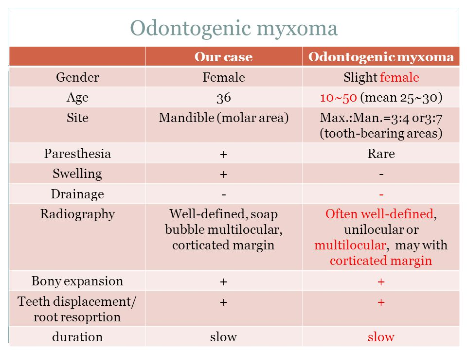 Odontogenic myxoma Our case Odontogenic myxoma Gender Female