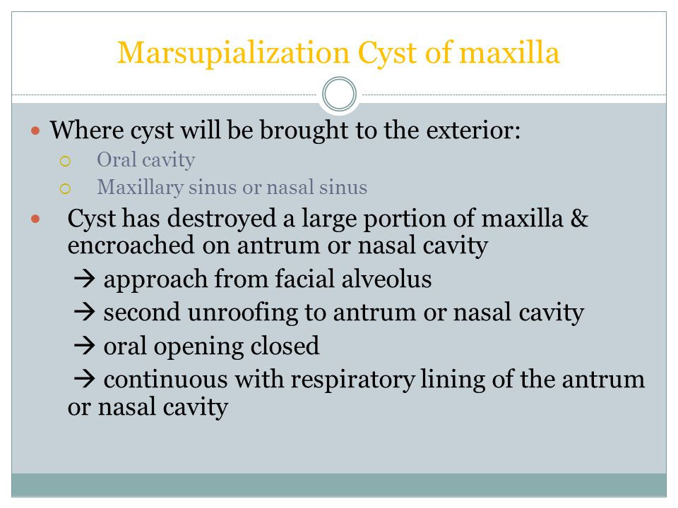 Marsupialization Cyst of maxilla