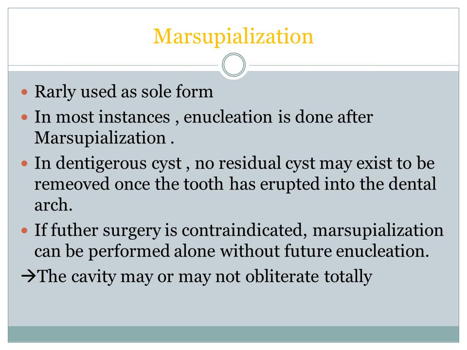 Marsupialization Rarly used as sole form