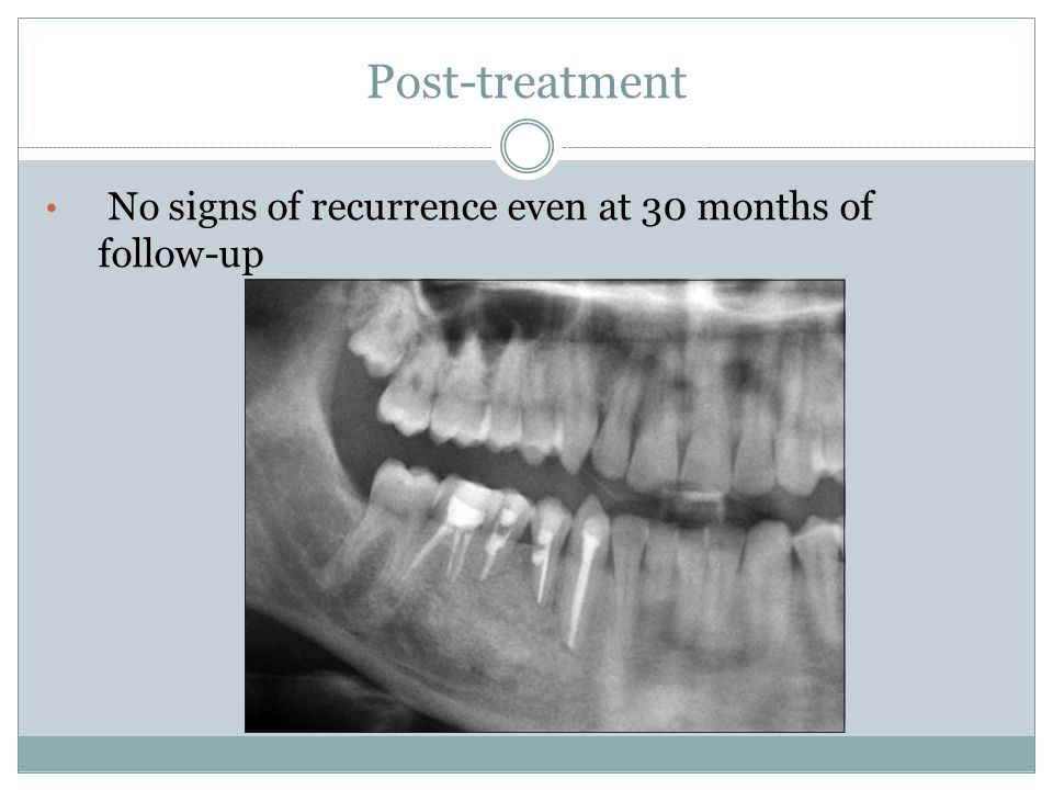 Post-treatment No signs of recurrence even at 30 months of follow-up