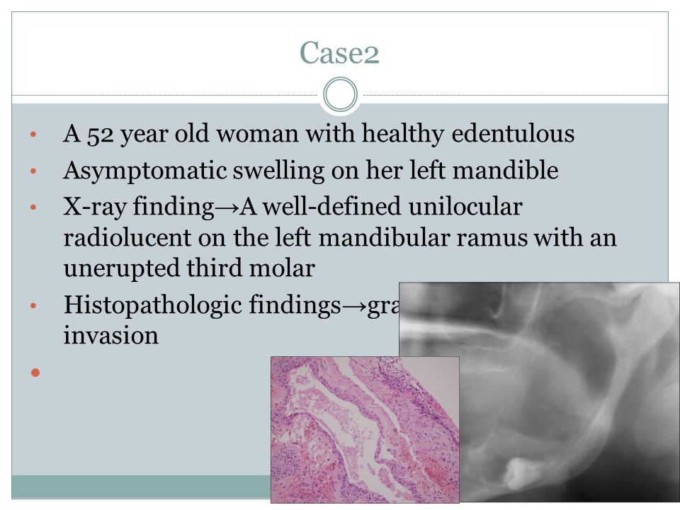 Case2 A 52 year old woman with healthy edentulous