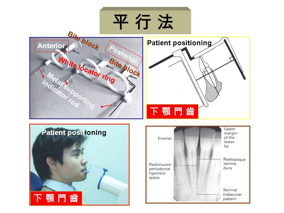 平 行 法 下 顎 門 齒 Patient positioning Anterior Posterior