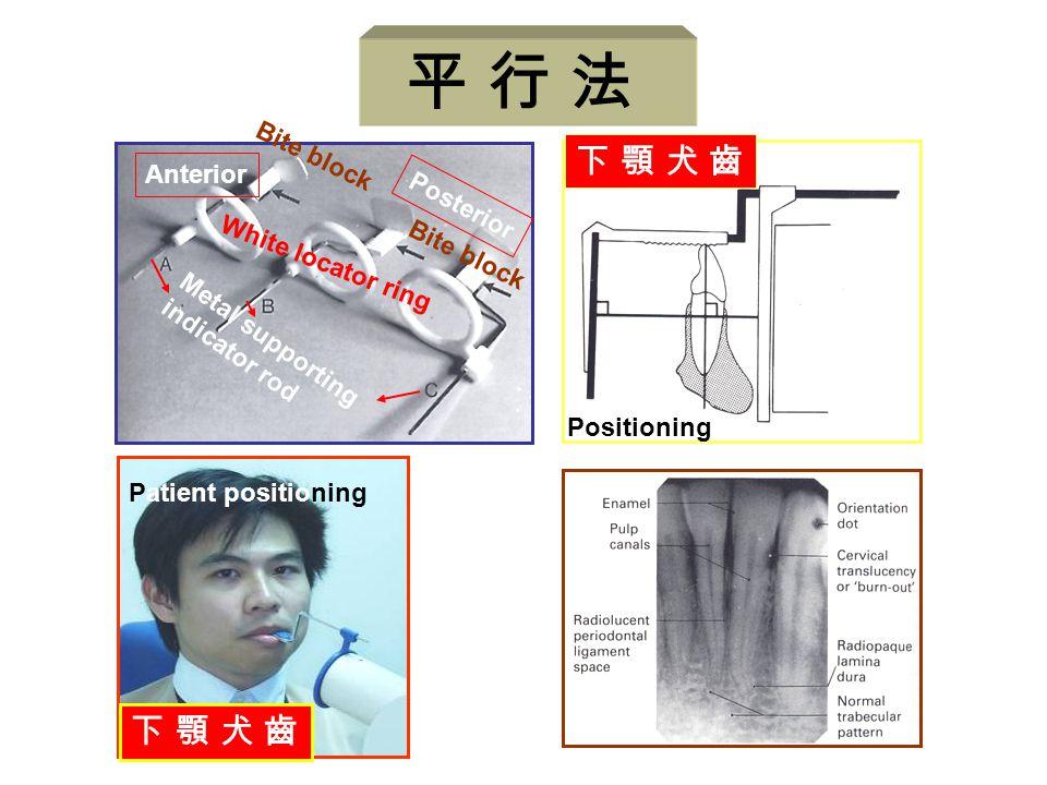 平 行 法 下 顎 犬 齒 Anterior Posterior White locator ring Bite block