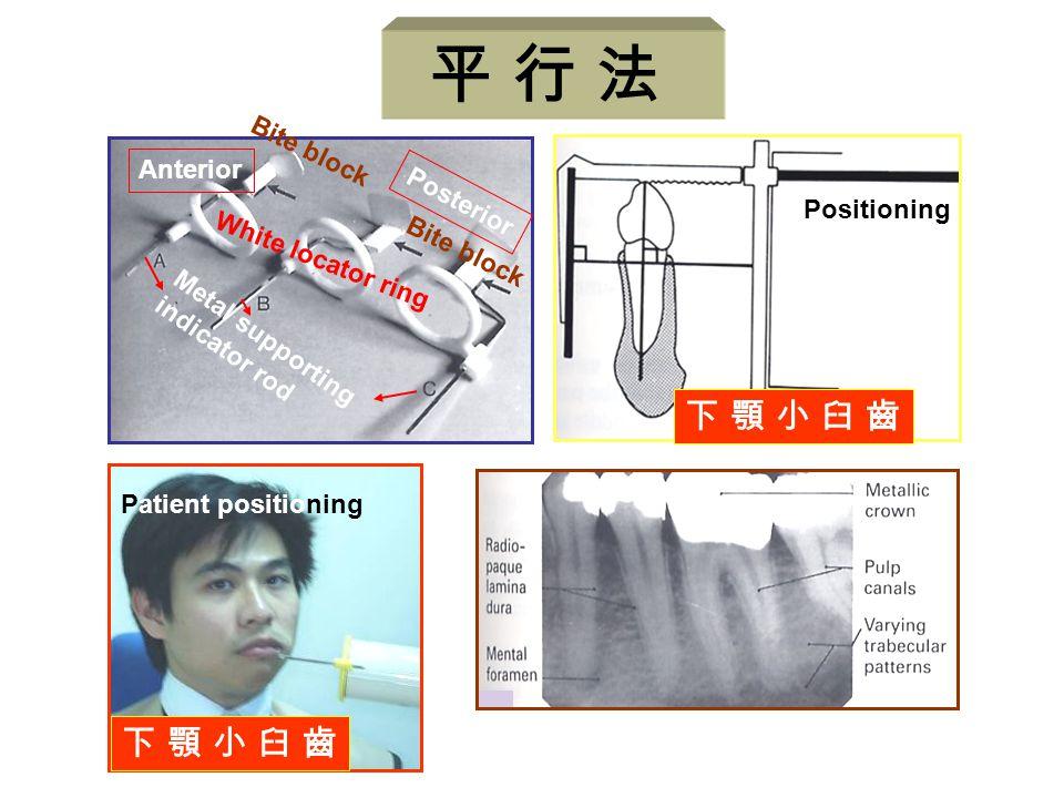 平 行 法 下 顎 小 臼 齒 Anterior Posterior Positioning White locator ring