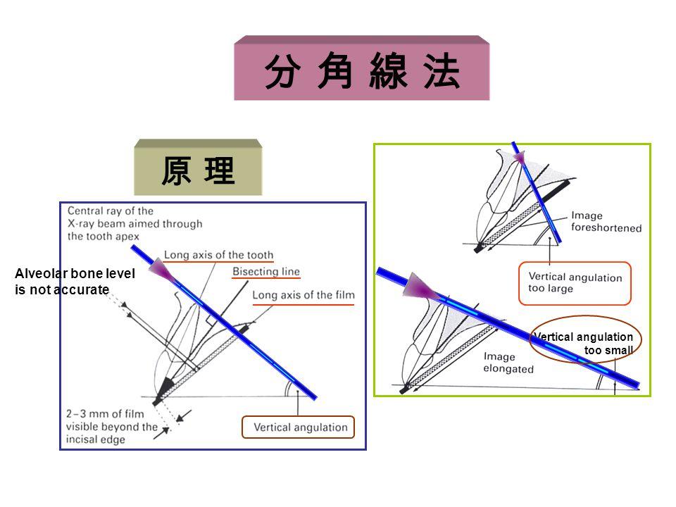 分 角 線 法 原 理 Alveolar bone level is not accurate Vertical angulation