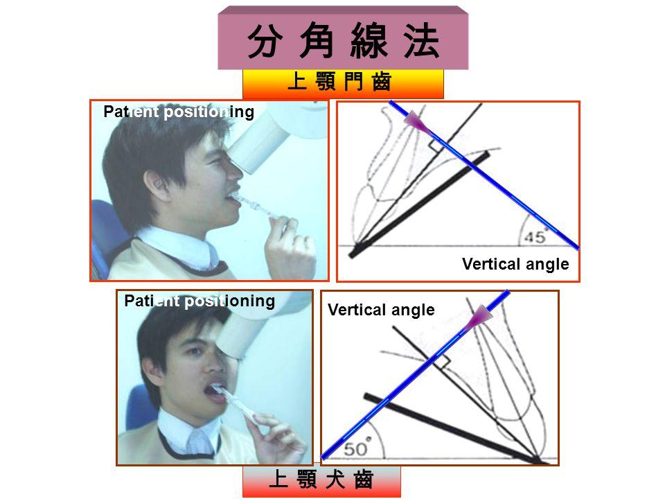 分 角 線 法 上 顎 犬 齒 Vertical angle 上 顎 門 齒 Patient positioning