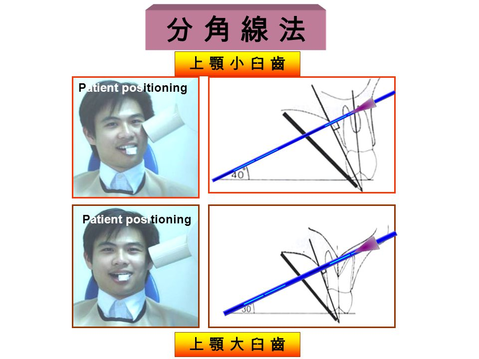 分 角 線 法 Patient positioning 上 顎 小 臼 齒 上 顎 大 臼 齒