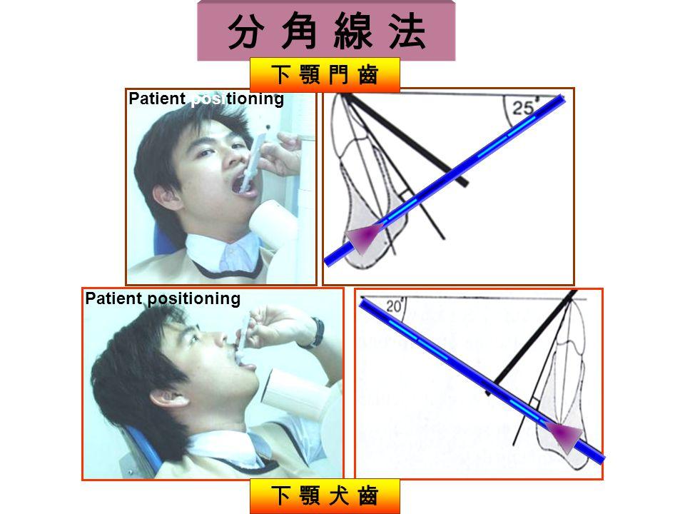 分 角 線 法 Patient positioning 下 顎 犬 齒 下 顎 門 齒