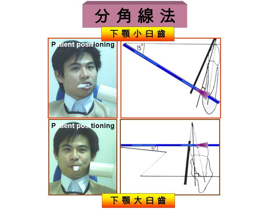 分 角 線 法 下 顎 小 臼 齒 Patient positioning Patient positioning 下 顎 大 臼 齒