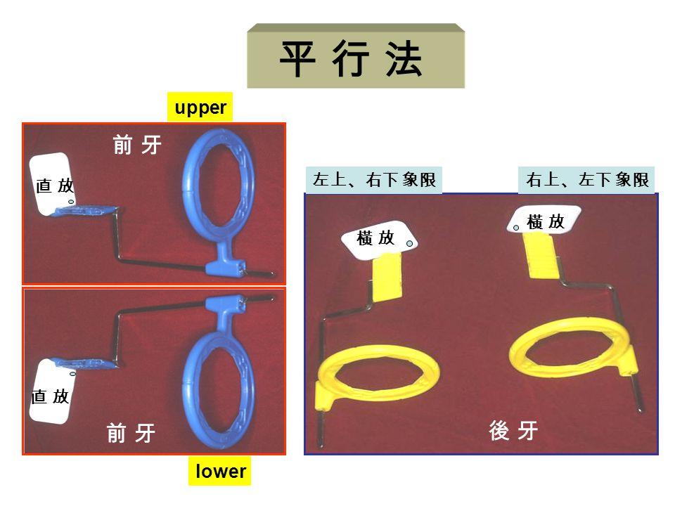平 行 法 前 牙 直 放 upper lower 後 牙 橫 放 左上、右下 象限 右上、左下 象限