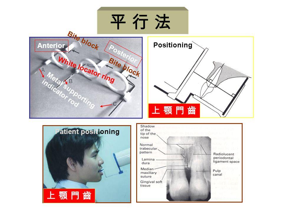 平 行 法 上 顎 門 齒 Anterior Positioning Posterior White locator ring
