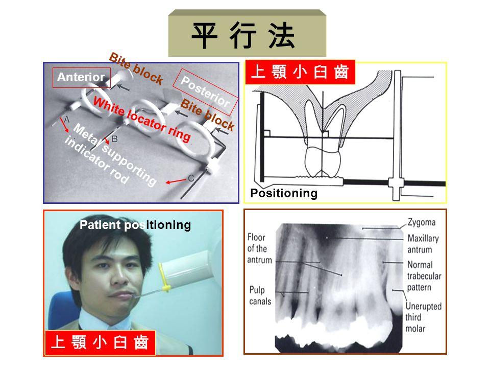平 行 法 上 顎 小 臼 齒 Anterior Posterior White locator ring Bite block