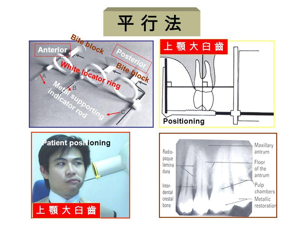 平 行 法 上 顎 大 臼 齒 Anterior Posterior White locator ring Bite block