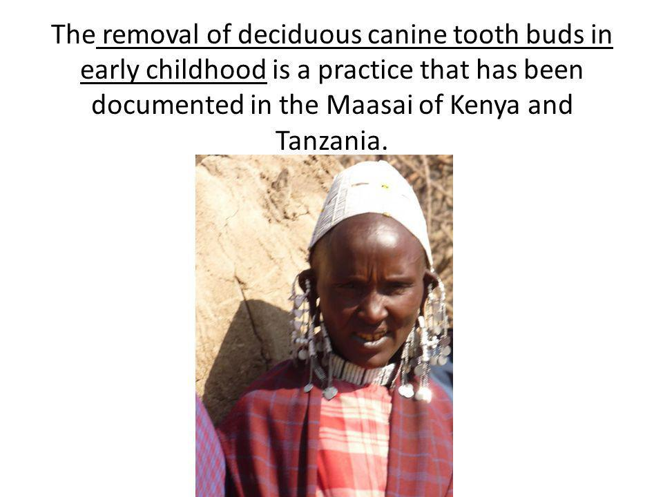 The removal of deciduous canine tooth buds in early childhood is a practice that has been documented in the Maasai of Kenya and Tanzania.