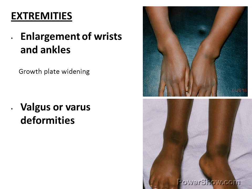 EXTREMITIES Enlargement of wrists and ankles Growth plate widening Valgus or varus deformities