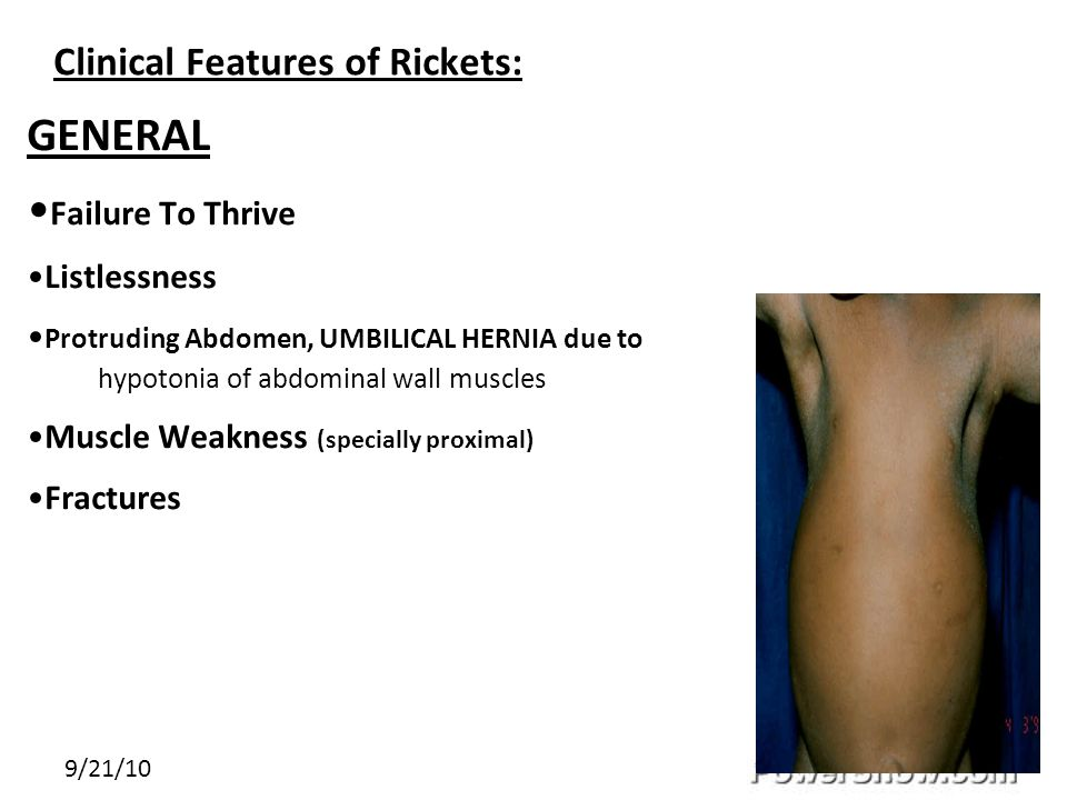 Clinical Features of Rickets: