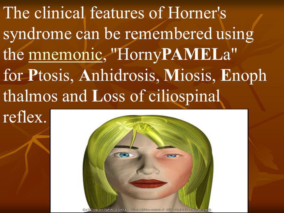 The clinical features of Horner s syndrome can be remembered using the mnemonic, HornyPAMELa for Ptosis, Anhidrosis, Miosis, Enophthalmos and Loss of ciliospinal reflex.