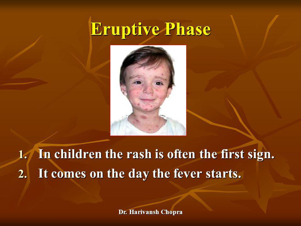 Eruptive Phase In children the rash is often the first sign.