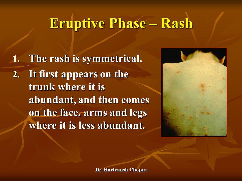 Eruptive Phase – Rash The rash is symmetrical.