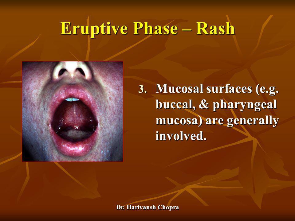 Eruptive Phase – Rash Mucosal surfaces (e.g. buccal, & pharyngeal mucosa) are generally involved.