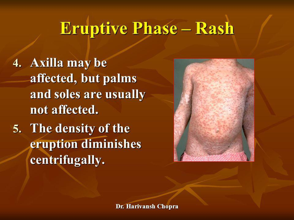 Eruptive Phase – Rash Axilla may be affected, but palms and soles are usually not affected.