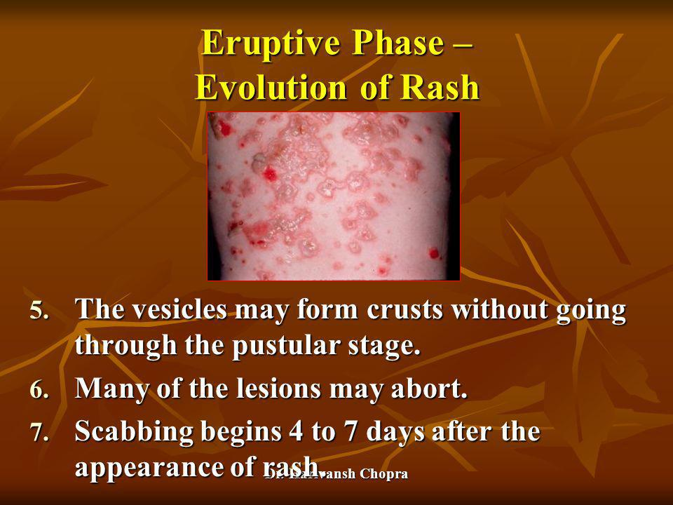 Eruptive Phase – Evolution of Rash