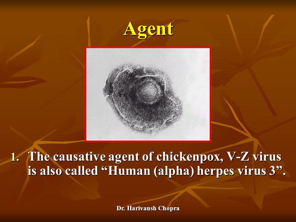Agent The causative agent of chickenpox, V-Z virus is also called Human (alpha) herpes virus 3 .