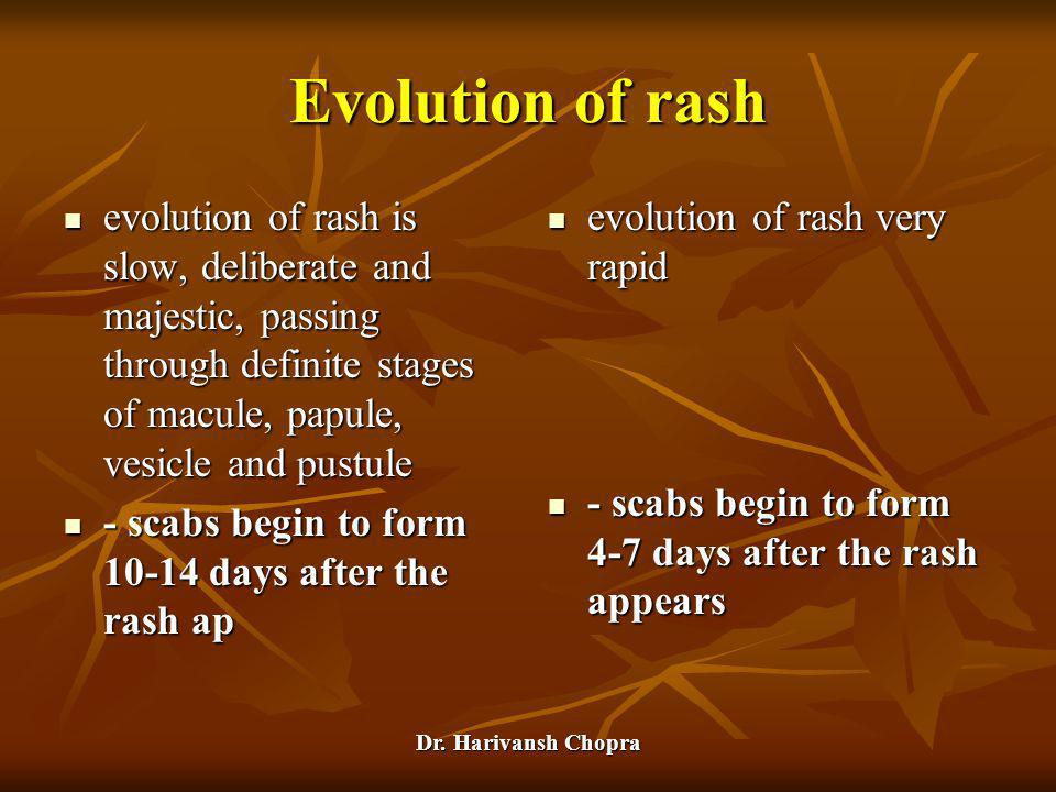 Evolution of rash evolution of rash is slow, deliberate and majestic, passing through definite stages of macule, papule, vesicle and pustule.