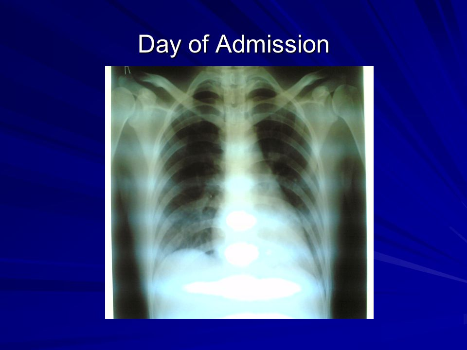 Day of Admission Chest xray was normal