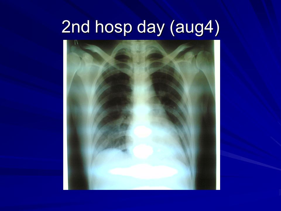 2nd hosp day (aug4) Chest xray: NORMAL