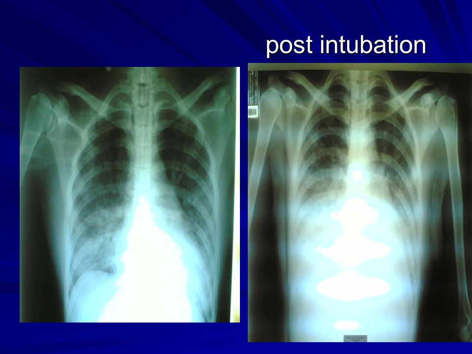 post intubation