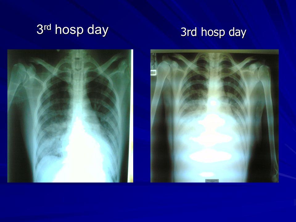 3rd hosp day 3rd hosp day