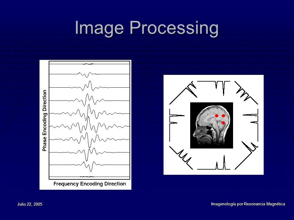 Image Processing Julio 22, 2005 Imagenología por Resonancia Magnética
