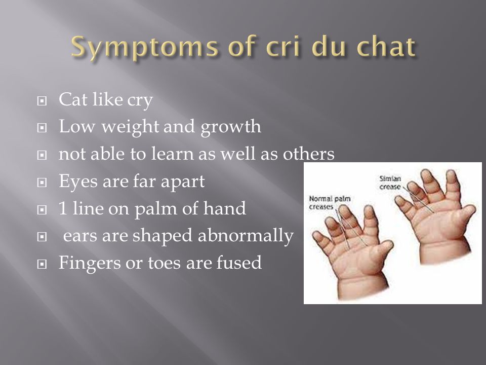 Symptoms of cri du chat Cat like cry Low weight and growth