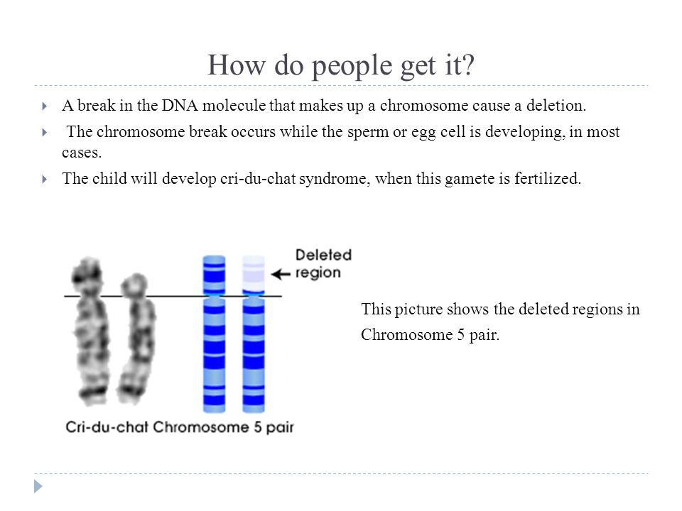 How do people get it A break in the DNA molecule that makes up a chromosome cause a deletion.