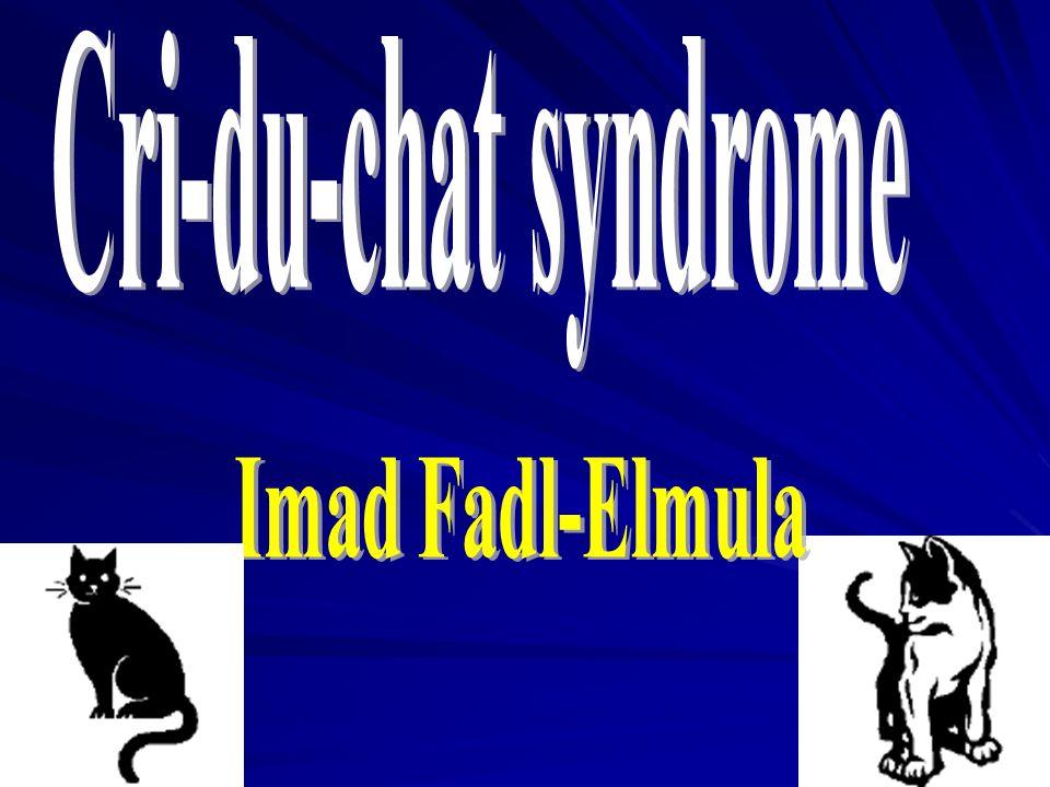 Cri-du-chat syndrome Imad Fadl-Elmula
