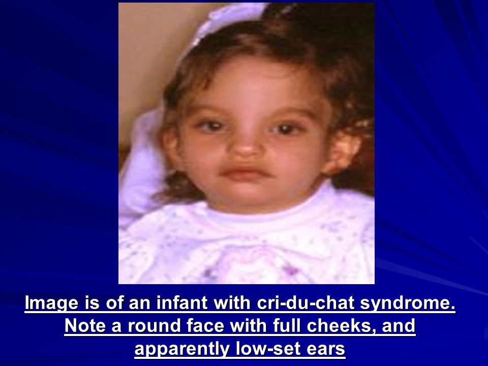 Image is of an infant with cri-du-chat syndrome