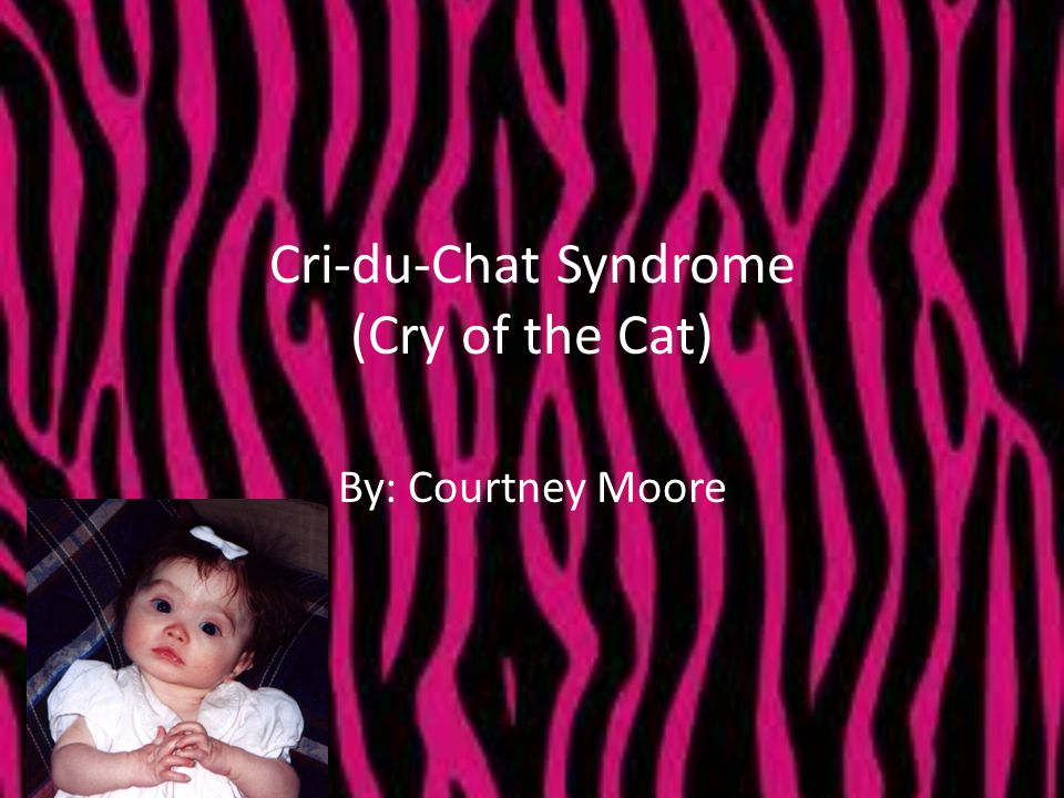 Cri-du-Chat Syndrome (Cry of the Cat)