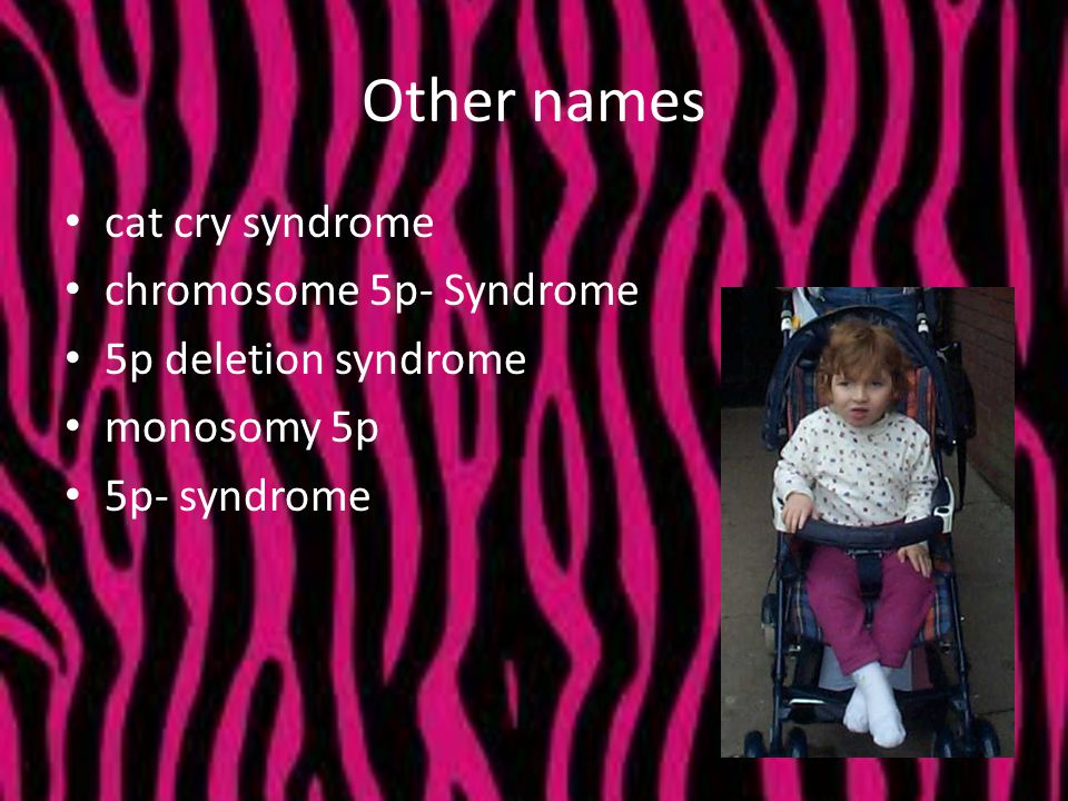 Other names cat cry syndrome chromosome 5p- Syndrome