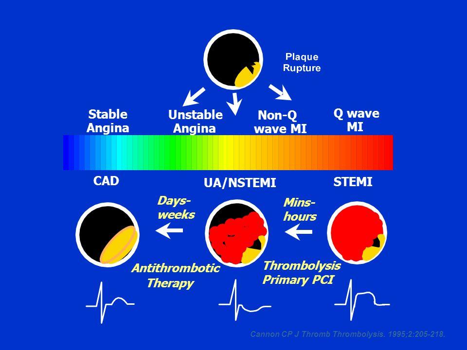 Stable Unstable Q wave Non-Q Angina Angina MI wave MI CAD UA/NSTEMI