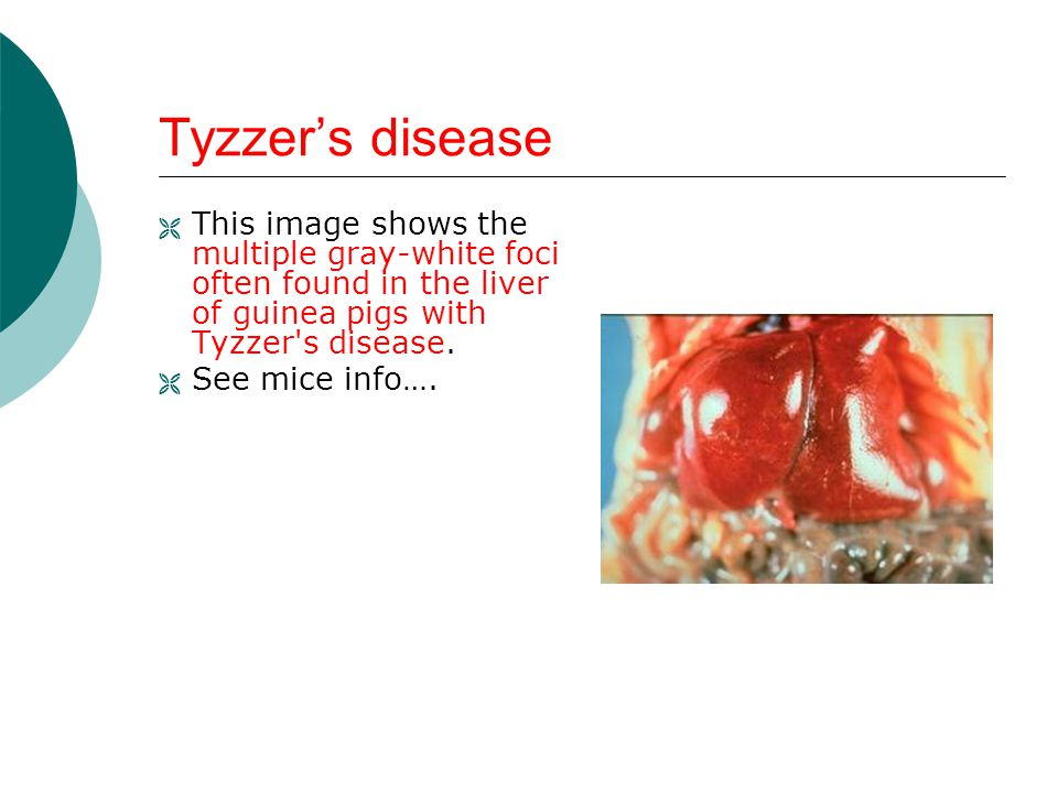 Tyzzer's disease This image shows the multiple gray-white foci often found in the liver of guinea pigs with Tyzzer s disease.