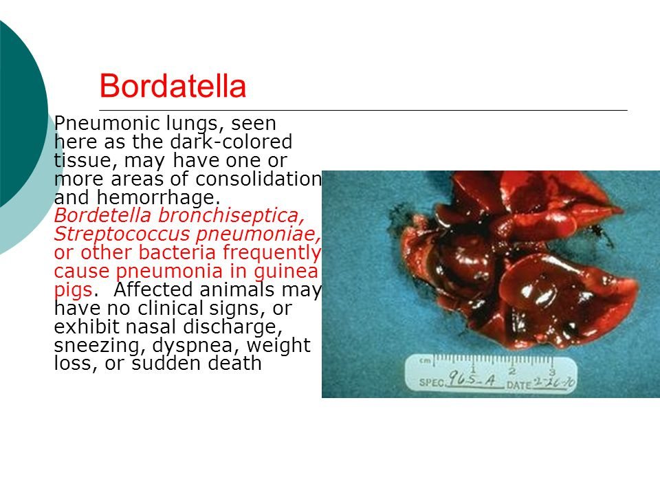Bordatella