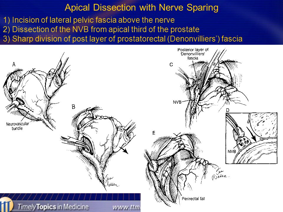 Apical Dissection with Nerve Sparing