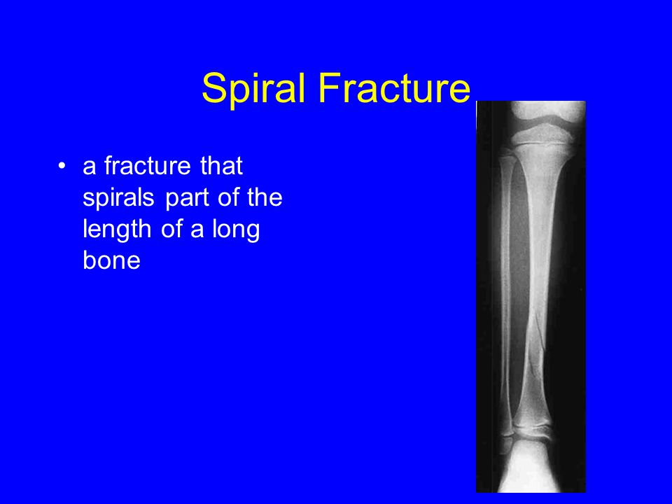 Spiral Fracture a fracture that spirals part of the length of a long bone
