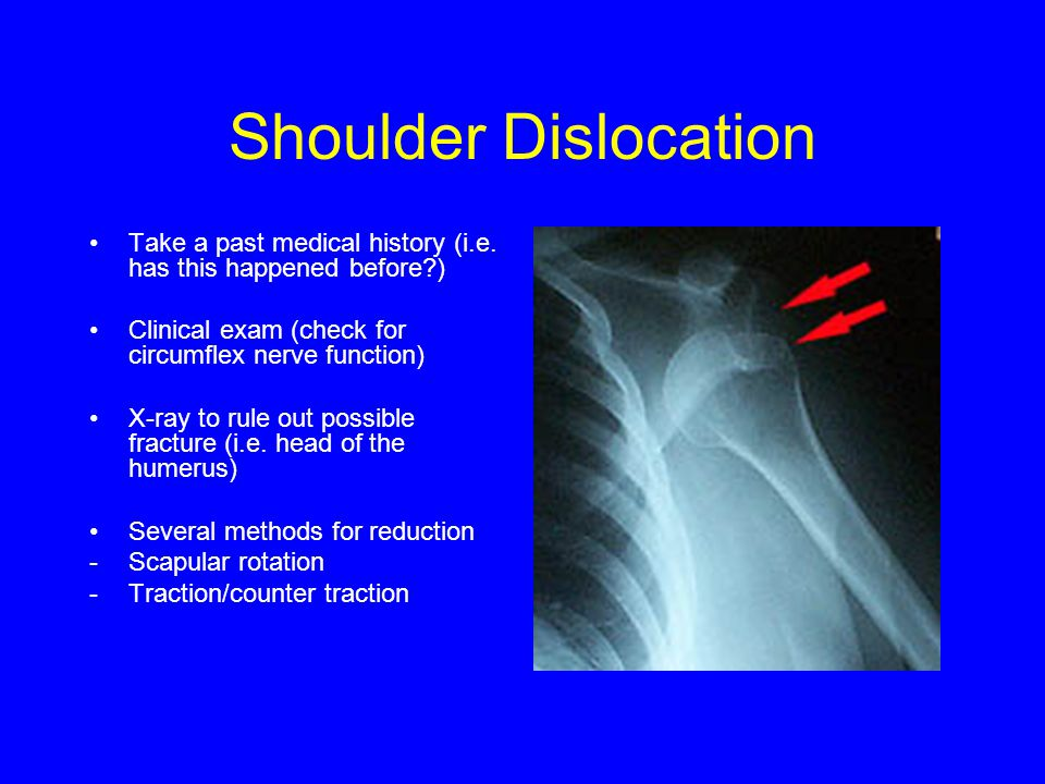 Shoulder Dislocation Take a past medical history (i.e. has this happened before ) Clinical exam (check for circumflex nerve function)