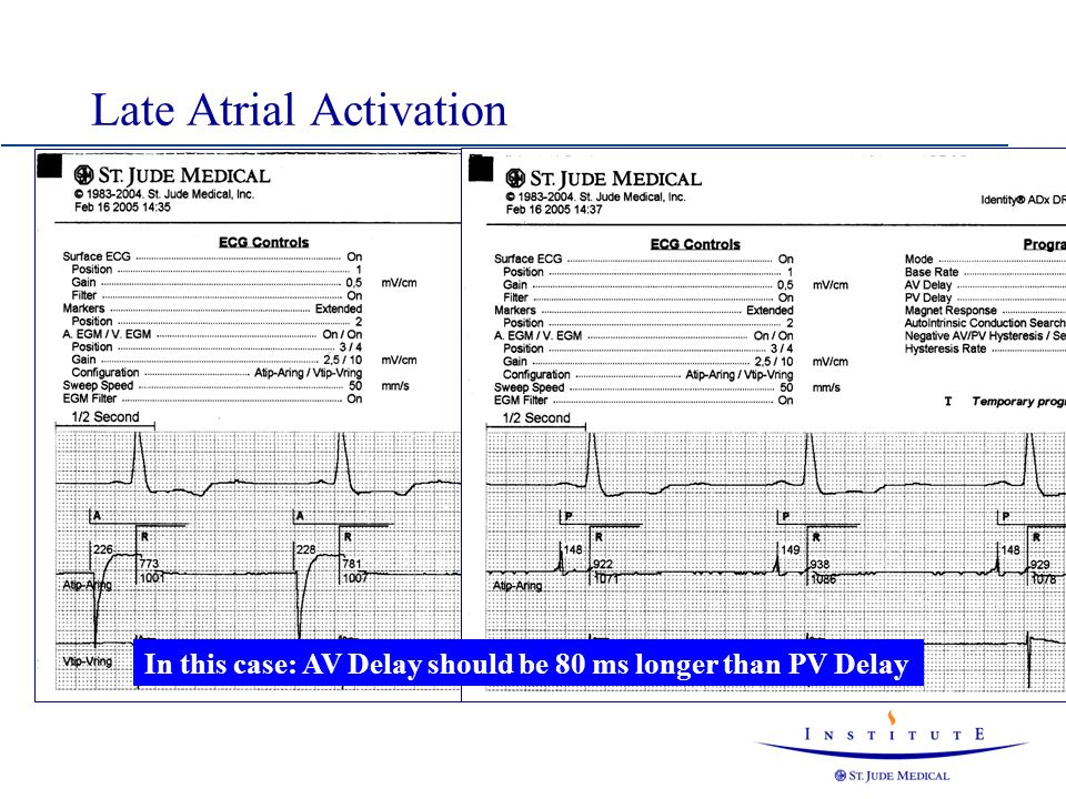 Late Atrial Activation