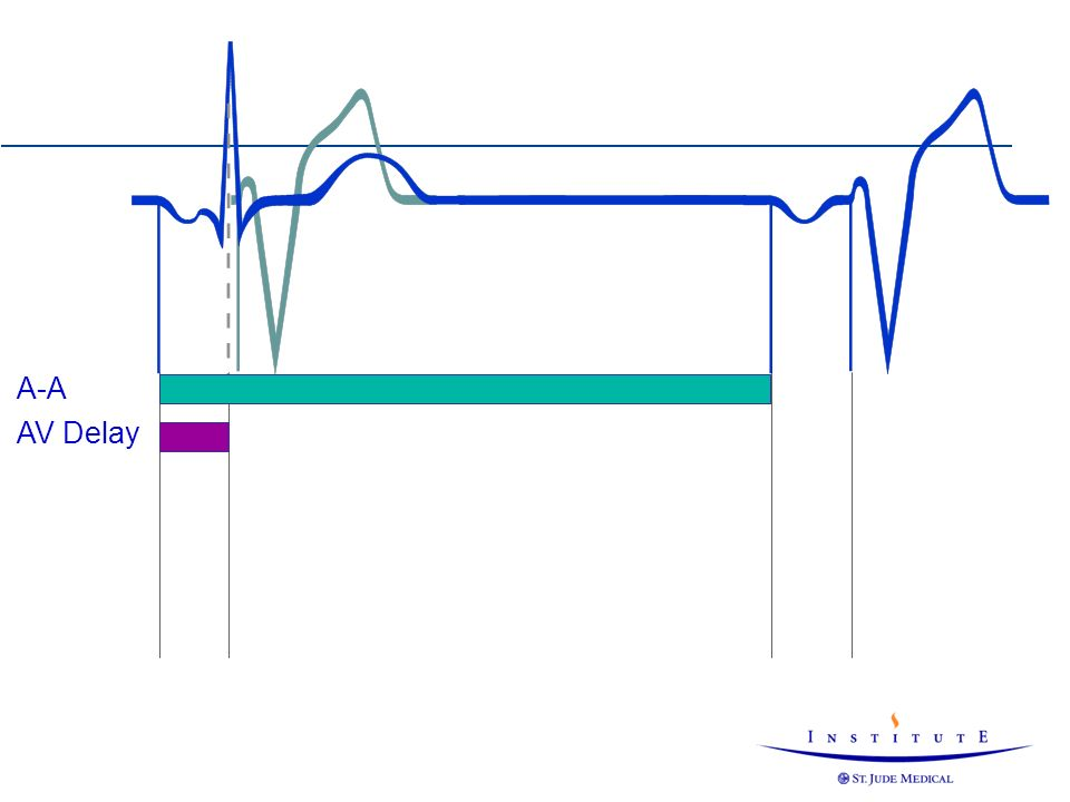 A-A AV Delay Both the AV and PV delay can be terminated by sensing of a ventricular event.