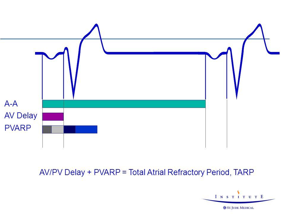 AV/PV Delay + PVARP = Total Atrial Refractory Period, TARP