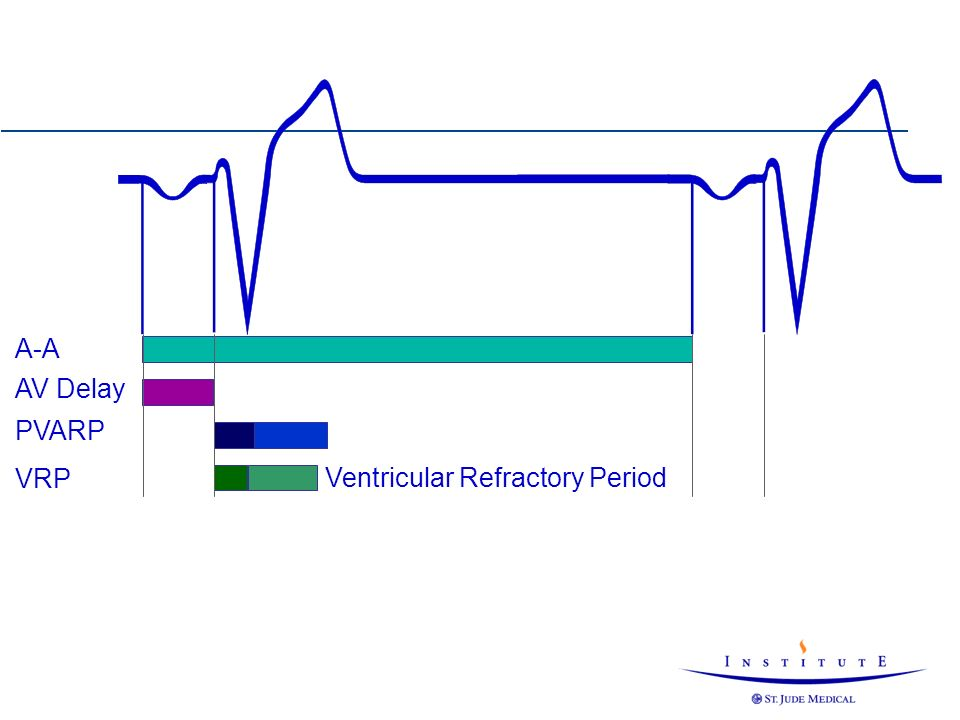 Ventricular Refractory Period